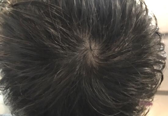 頭頂部のアップ